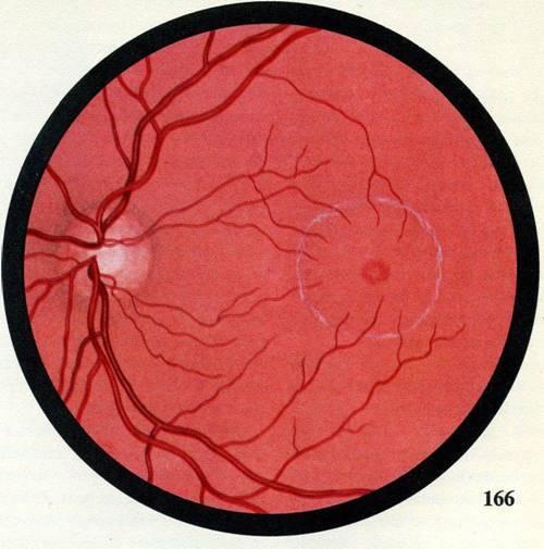 Осмотр глазного дна – как проходит обследование, результаты (норма и патология), цена. осмотр глазного дна у беременных женщин, детей, новорожденных. где можно пройти обследование?