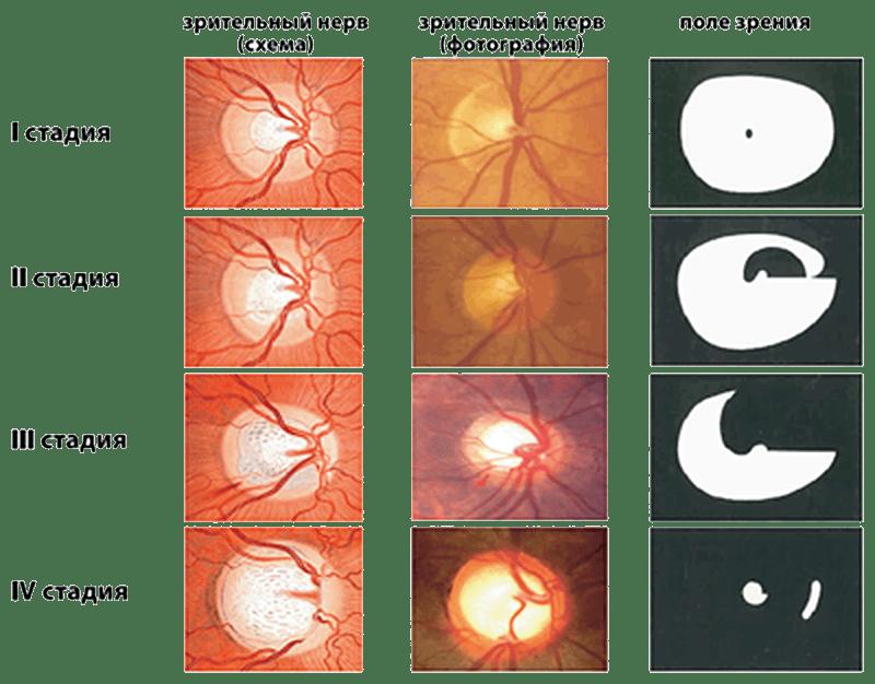 Признаки глаукомы и симптомы, лечение и профилактика, первые, операция, народные средства