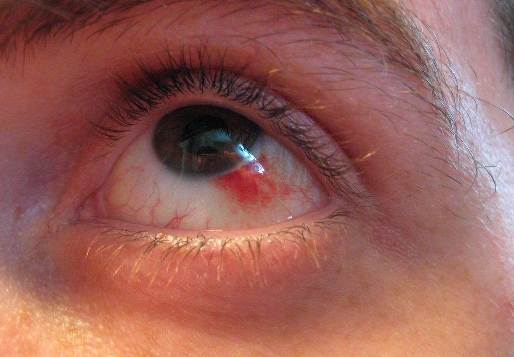 Кровоизлияние в глаз - лечение и причины крови в глазном яблоке
