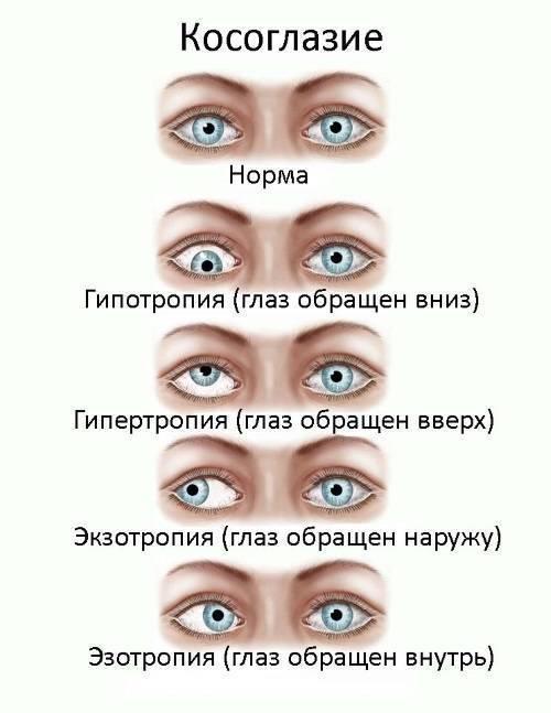 Расходящееся косоглазие у детей: причины и лечение — глаза эксперт