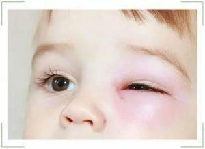 Отек глаз по утрам: причины возникновения, лечение, как убрать