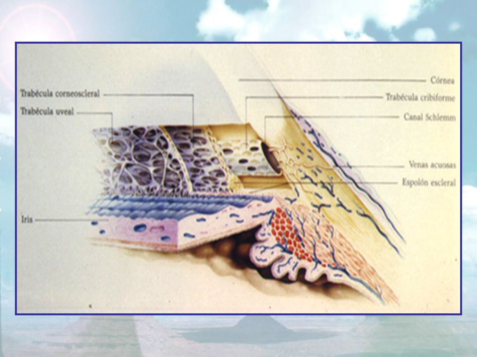Способ хирургической гониопунктуры после операции непроникающей глубокой склерэктомии