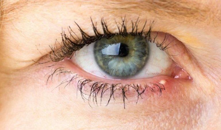 Внутренний ячмень на глазу: как лечить, правильное лечение пораженного внутри века, сложно ли вылечить заболевание