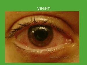 Увеит глаза: причины, симптомы, виды - передний, хронический, задний, лечение у детей и капли для взрослых