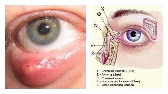 Причины непроходимости слёзного канала, симптомы, диагностика и лечение