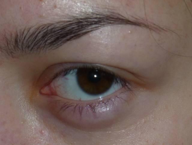 """Отек век: причины, симптомы и методы лечения - """"здоровое око"""""""
