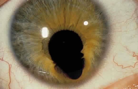 Колобома радужной оболочки глаза