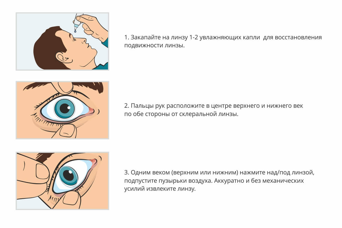 Что делать, если линза закатилась за глазное яблоко: как достать oculistic.ru что делать, если линза закатилась за глазное яблоко: как достать
