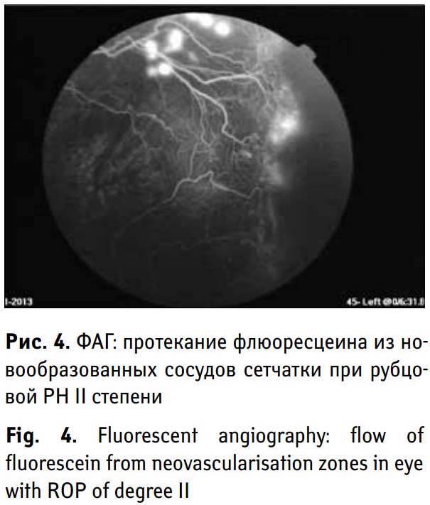 Флюоресцентная ангиография сетчатки (фаг)