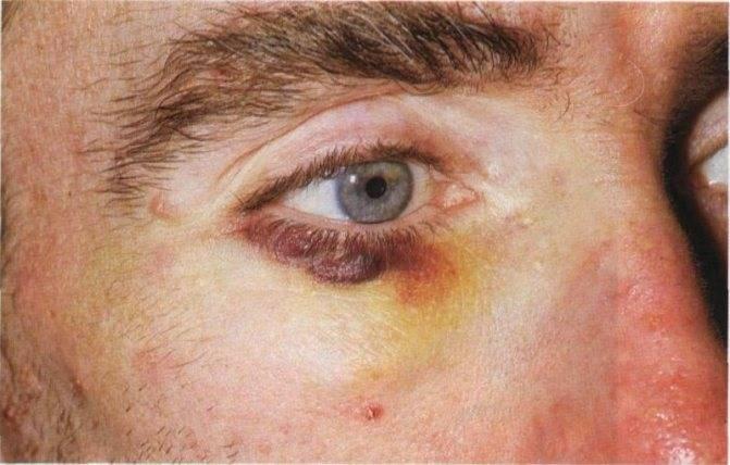 Как убрать темные круги под глазами? темные круги под глазами: причины, лечение :: syl.ru