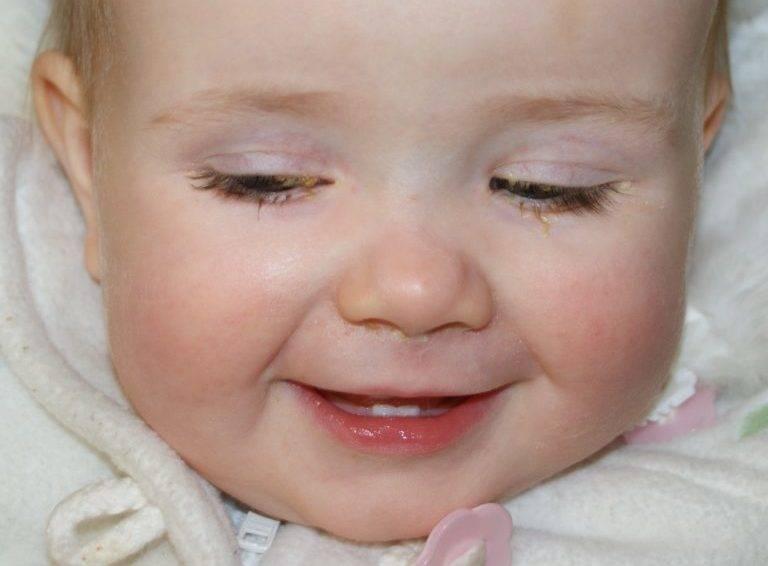 Конъюнктивит у новорожденного: причины болезни у младенцев, симптомы, чем лечить грудничка в домашних условиях, как защитить ребенка 2-3 месяцев
