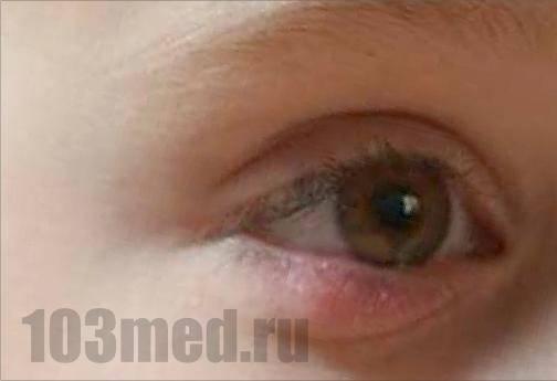 Халязион у детей: лечение нижнего и верхнего века, причины болезни глаз по мнению доктора комаровского