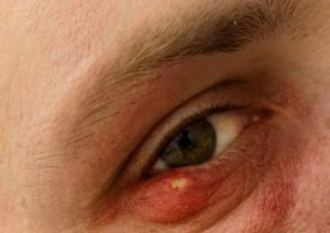 Из-за чего появляется простуда на глазах?