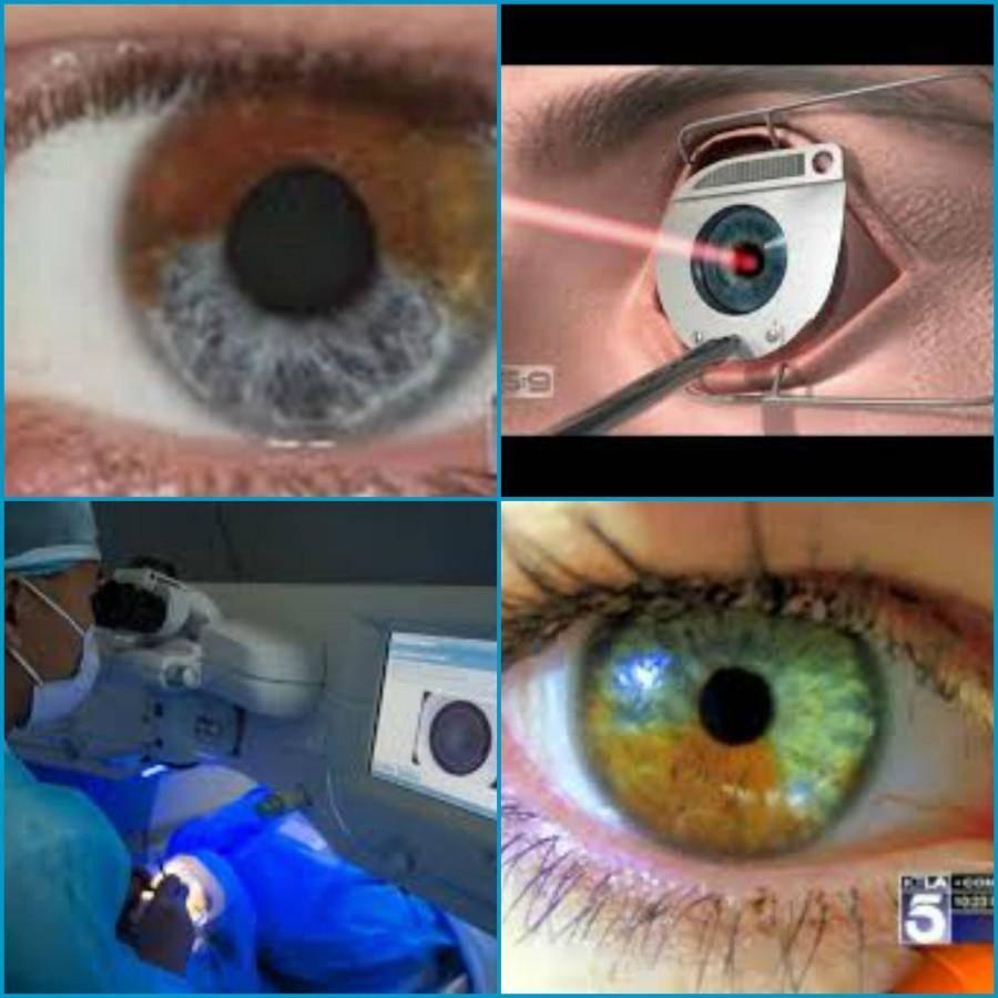 Лазерная операция по смене цвета глаз