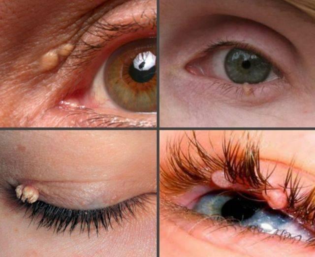 Папиллома на глазу - виды и способы распространения,  лечение