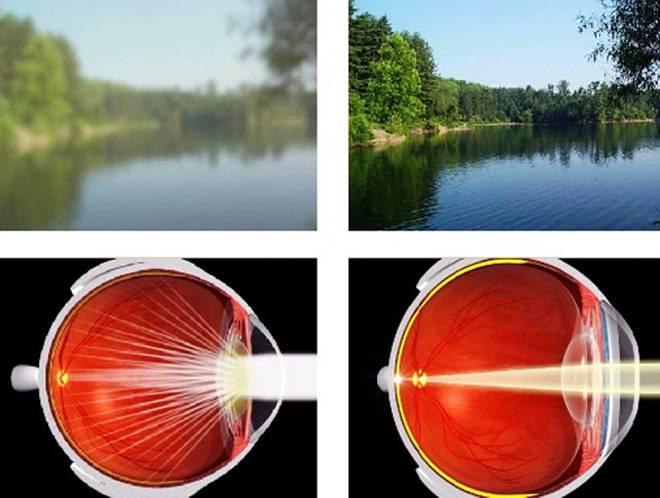 Навести резкость: основные проблемы со зрением и способы их решения