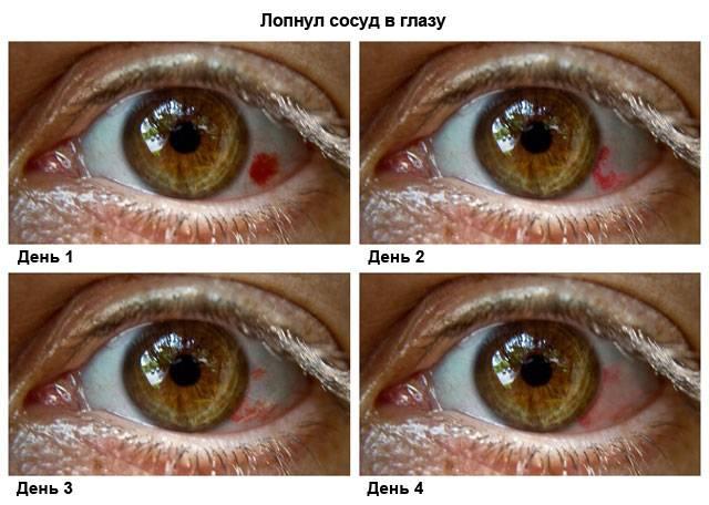 Звездочки в глазах: причины, характерные симптомы и лечение. от чего звездочки в глазах: причины и лечение почему возникают звезды перед глазами