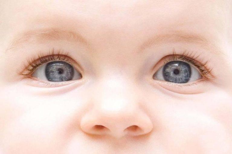 Нистагм: что это такое у новорожденных, если его обнаружили у маленького ребенка, причины и симптомы заболевания