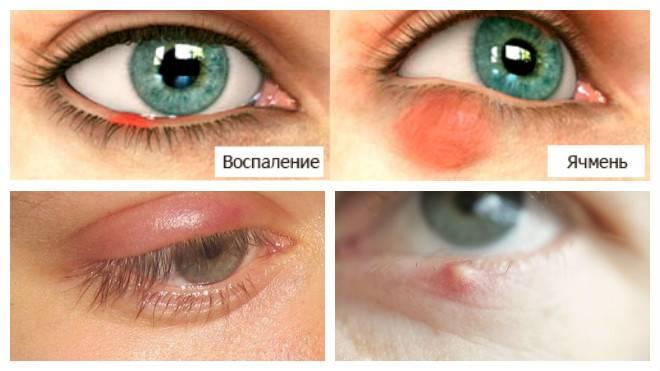Как лечить ячмень на глазу