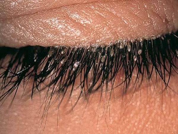 Ресничный клещ (демодекс) у человека: причины заражения опасным вредителем