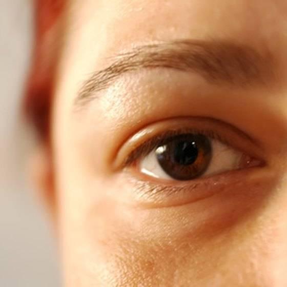 Желтые круги под глазами причины. отчего появляется жёлтая кожа вокруг глаз | школа красоты