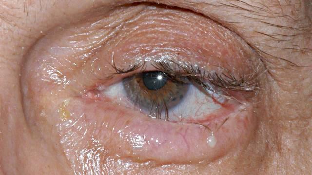 Пингвекула глаза: фото, лечение каплями и народными средствами, отзывы после удаления