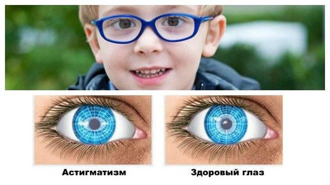 Восстановление зрения при астигматизме без операции