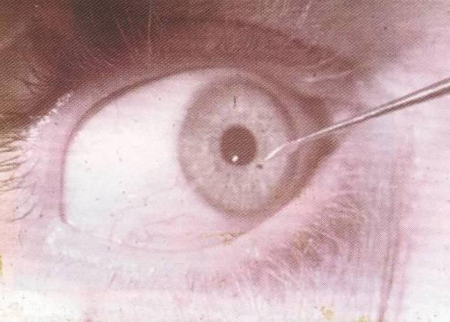 Что делать если стружка, соринка, ресница, окалина или иное инородное тело попало в глаз? :: polismed.com
