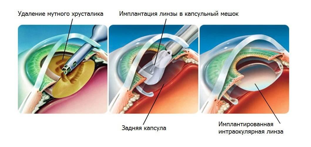 Факоаспирация катаракты