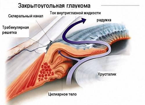 Открытоугольная и закрытоугольная глаукома