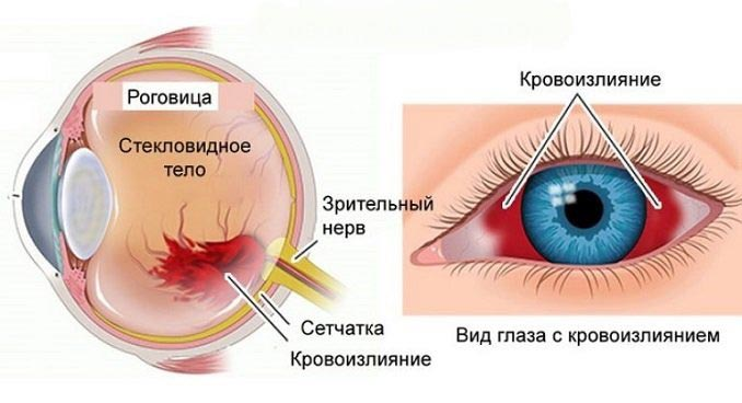 Спососбы лечения гемофтальма глаза