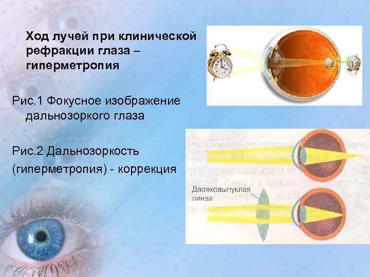 Клиническая рефракция