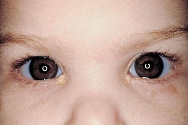 Бактериальный конъюнктивит у детей: лечение глаз, симптомы (фото), отличия, причины, профилактика, осложнения