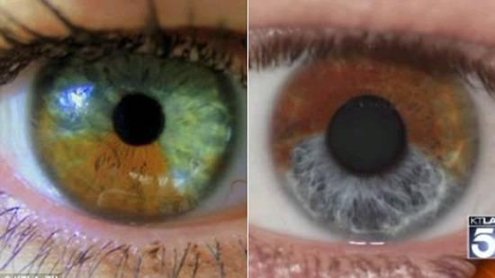 Особенности глаз сине-зеленого цвета