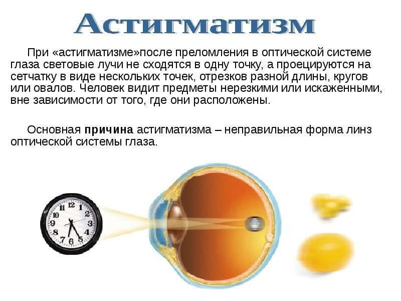 Астигматизм - что это за болезнь и как ее можно вылечить у взрослых
