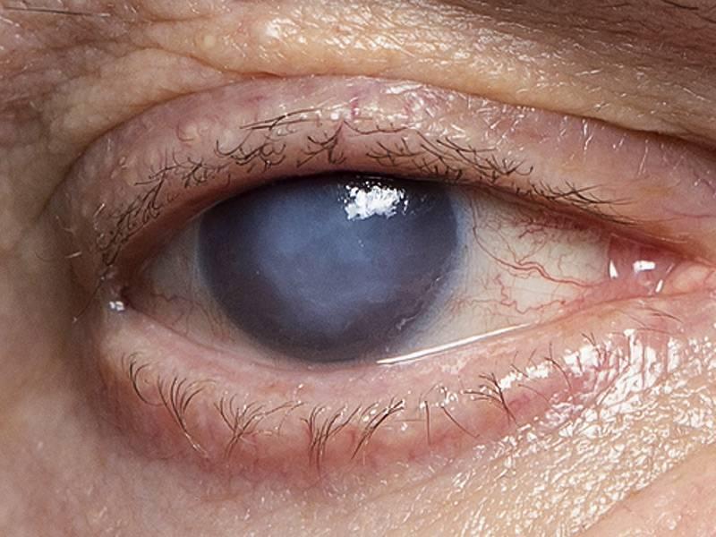 Послеоперационный эндофтальмит глаза - умный доктор