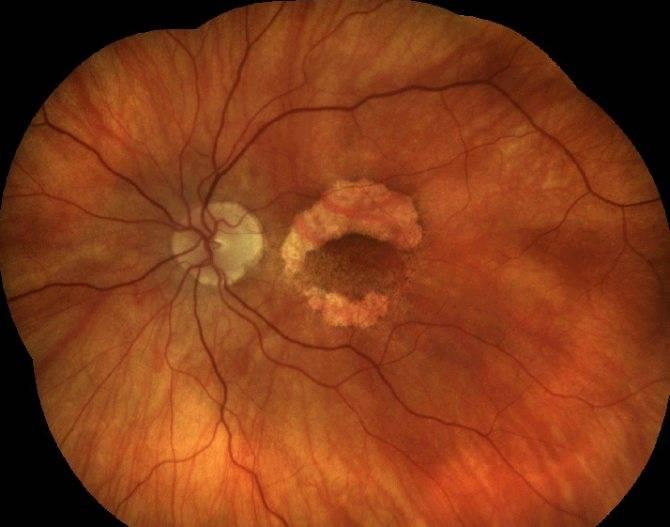 Симптоматика и лечение пигментной дистрофии сетчатки
