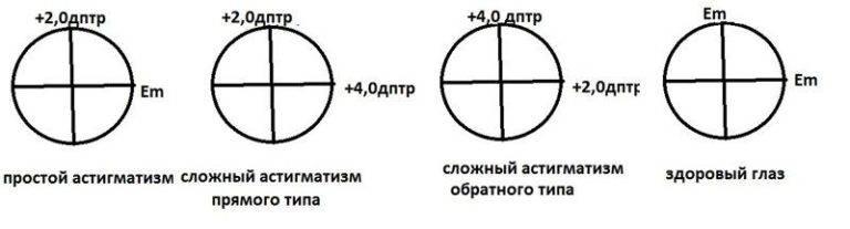 Гиперметропический астигматизм: у детей, смешанный, обратный, лечение