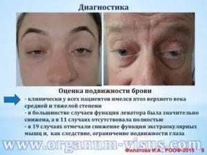 Что такое миопатия глаз и как её лечить oculistic.ru что такое миопатия глаз и как её лечить