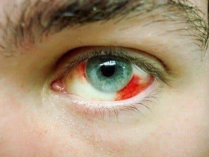 Кровоизлияние в глаз: причины и лечение, какие капли капать, диагностика, локализация (в склере, сетчатке, белке, передней камере), фото, профилактика