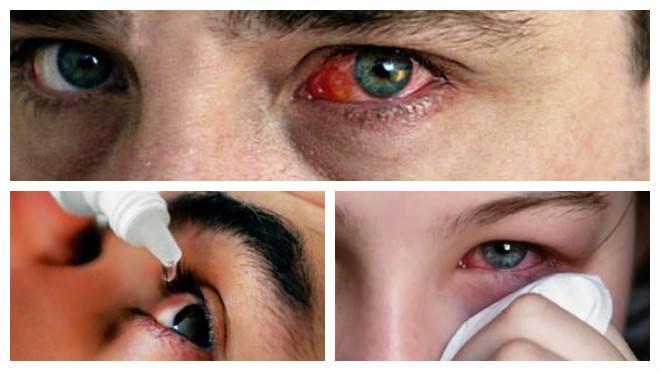Острые инфекционные конъюктивиты.