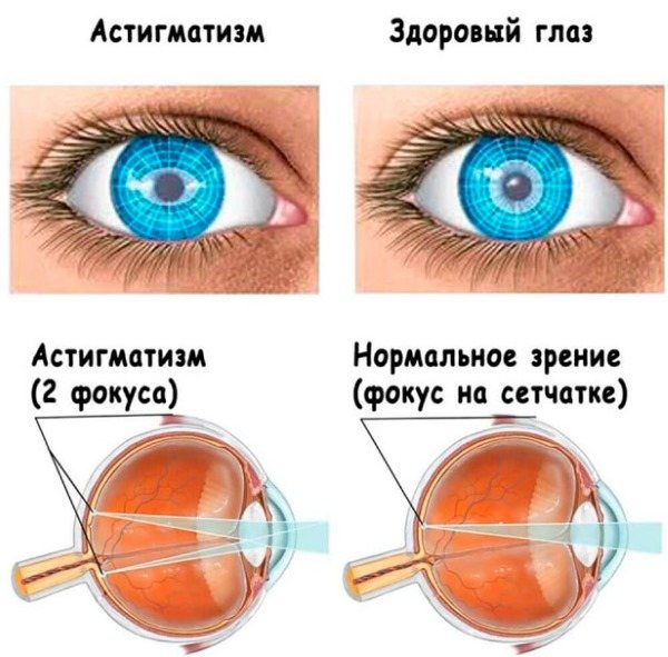 Mожет ли астигматизм пройти сам? причины возникновения и методы лечения — глаза эксперт