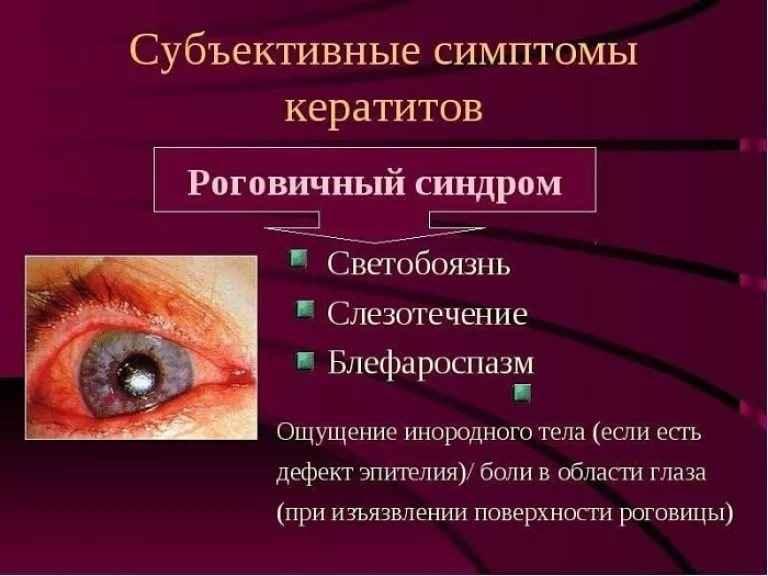 Ксероз роговицы глаза - что это, лечение, причины и симптомы