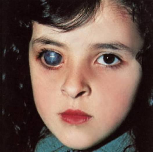 Всё скрыто от взора: врожденная глаукома у детей, чем она опасна