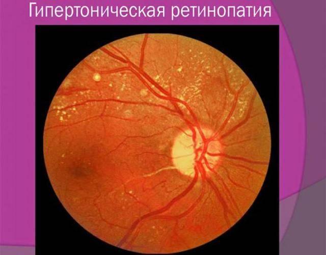 Фоновая ретинопатия и ретинальные сосудистые изменения. консультация офтальмолога.
