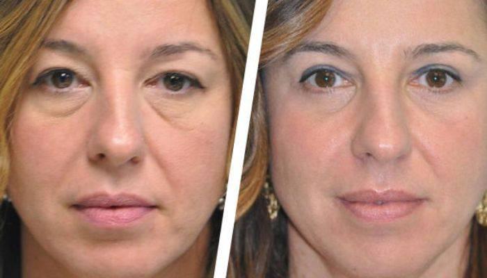 Грыжи под глазами: как избавиться без операции, способы убрать, причины и лечение