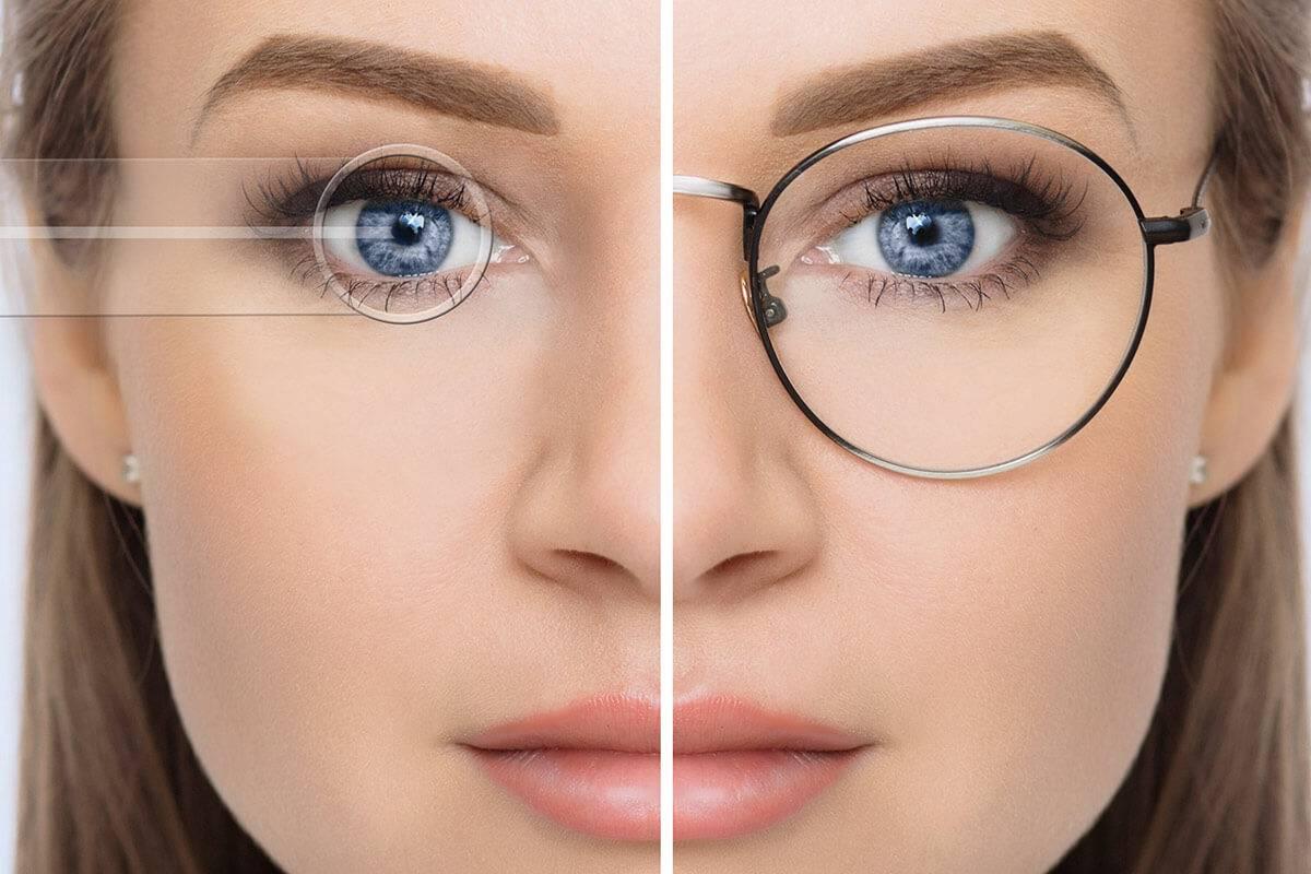 Плюсы и минусы лазерной коррекции зрения. личный опыт. – зожник     плюсы и минусы лазерной коррекции зрения. личный опыт. – зожник