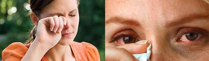Аллергия на глазах - причины и лечение