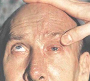 Электроофтальмия: что это такое, лечение, первая помощь, симптомы и причины