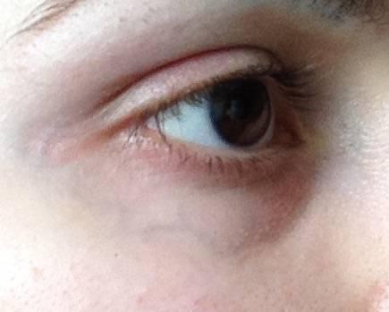 Вены под глазами - можно ли навсегда от них избавиться?